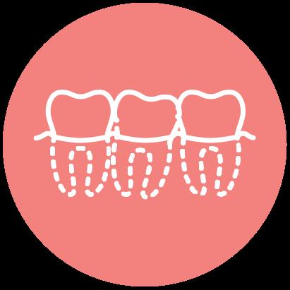 Hello Ortho Crowded Teeth