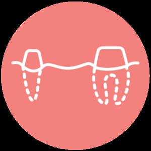 hello-ortho-icons-missing-worn-teeth