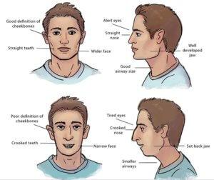 hello-ortho-mouth-breathing-vs-nasal-breathing